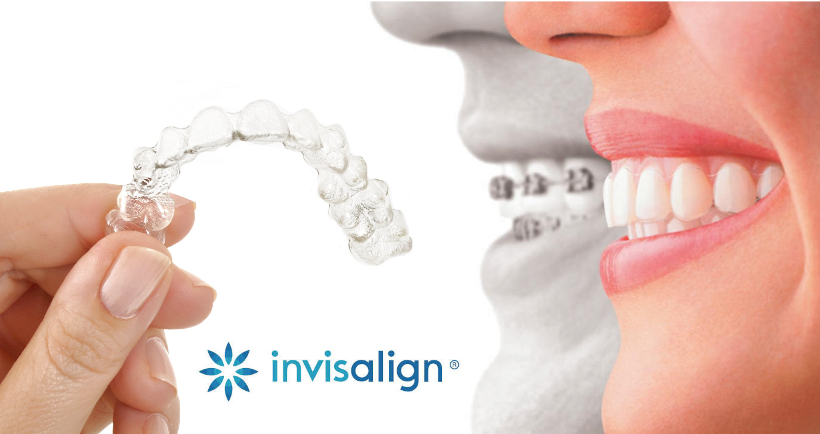 Clairemont Family Dental - Invisalign Clairemont, SD