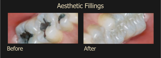 Aesthetic Fillings