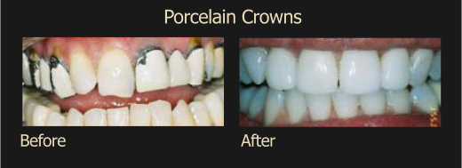 Procelain Crowns