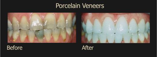 Procelain Veneers