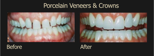 Procelain Veneers & Crown