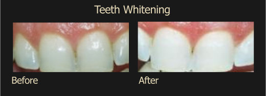 Teeth Witening